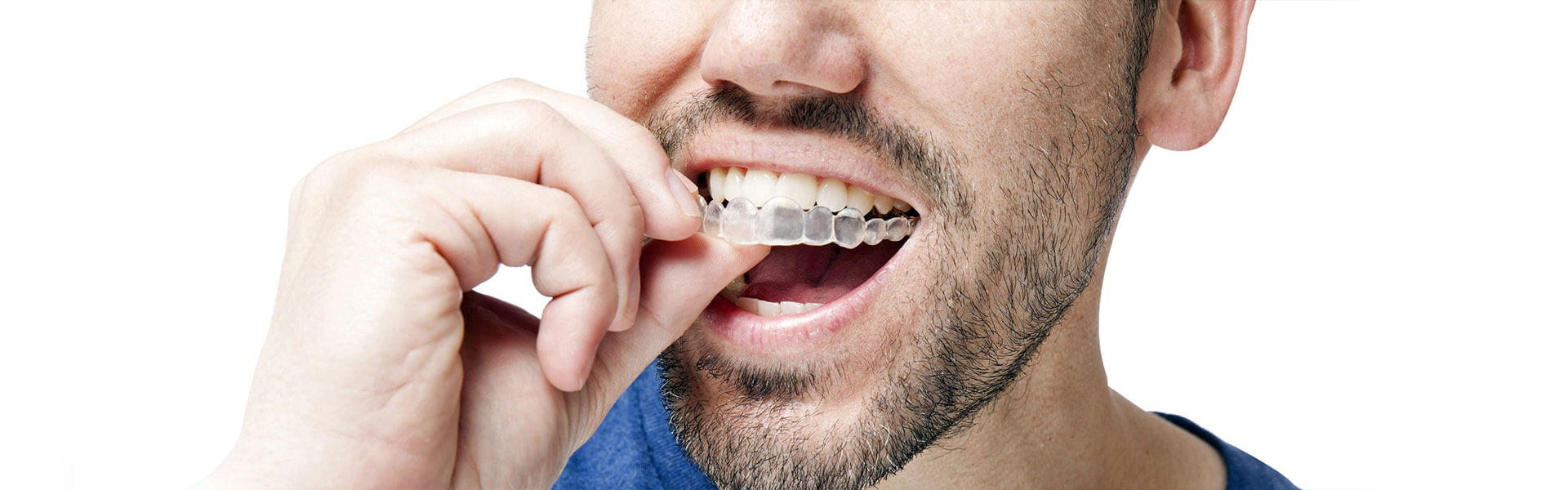 Moving Your Teeth Using Invisalign Braces